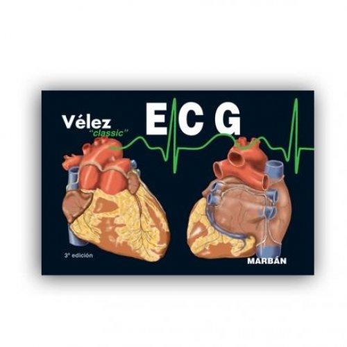 """ECG Electrocardiografía Vélez """"Classic"""""""